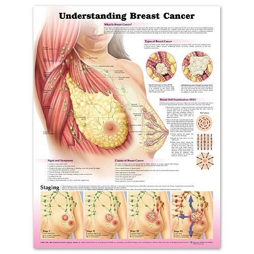 UNDERSTANDING BREAST CANCER CHART 2E - LAMINATED
