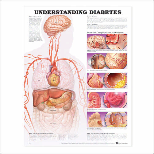 UNDERSTANDING DIABETES CHART - FLEXIBLE LAMINATION