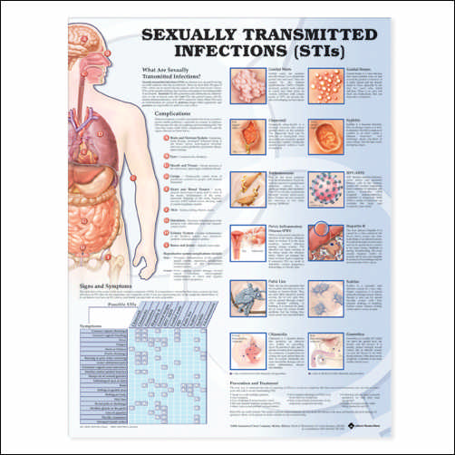 SEXUALLY TRANSMITTED INFECTIONS (STIS) FLEXIBLE LAMINATION