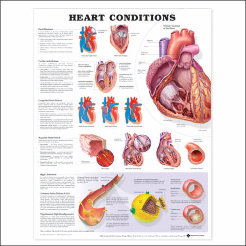 HEART CONDITIONS CHART - LAMINATED