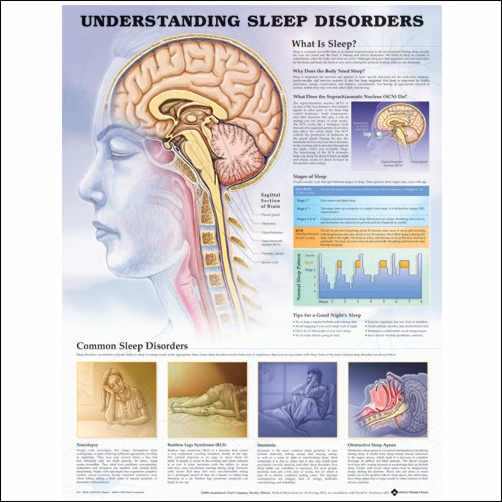 UNDERSTANDING SLEEP DISORDERS ANATOMICAL CHART - PAPER