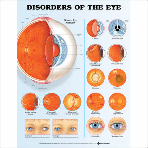 DISORDERS OF THE EYE 2ND EDITION - LAMINATED