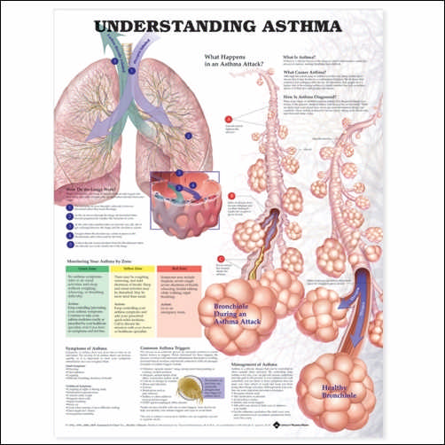 UNDERSTANDING ASTHMA ANATOMICAL CHART 2ND EDITION - LAMINATED