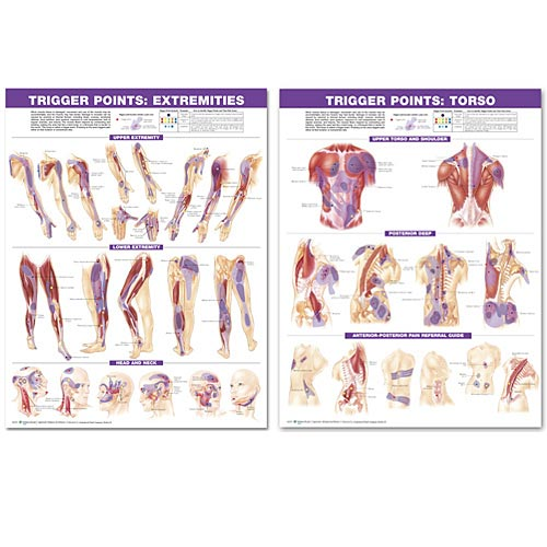 TRIGGER POINT CHART SET: TORSO & EXTREMITIES 2ND ED PAPER