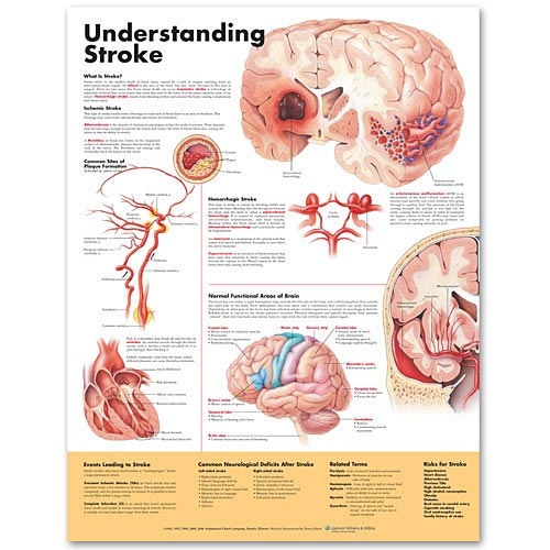 UNDERSTANDING STROKE 2ND EDITION LAMINATED CHART