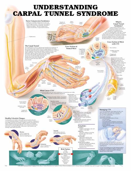 UNDERSTANDING CARPAL TUNNEL SYNDROME FLEXIBLE LAMINATION