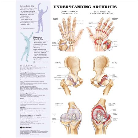 UNDERSTANDING ARTHRITIS – FLEXIBLE LAMINATION
