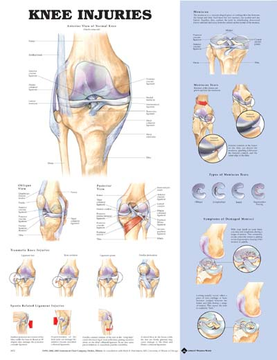 KNEE INJURIES UNMOUNTED CHART