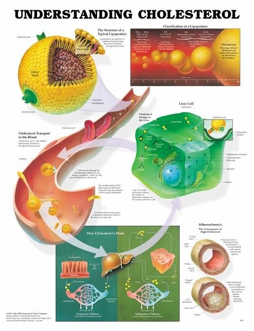 UNDERSTANDING CHOLESTEROL CHART - FLEXIBLE LAMINATION