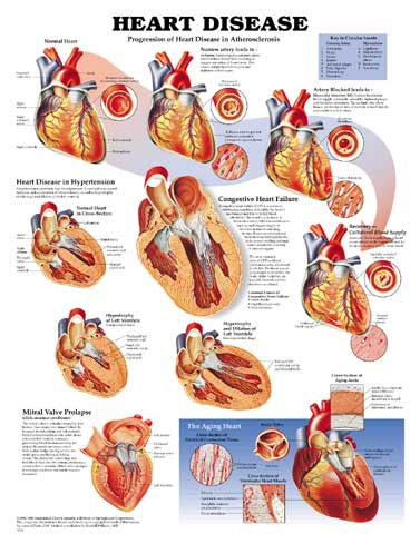 HEART DISEASE UNMOUNTED CHART