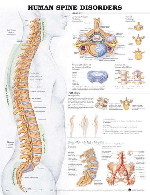 HUMAN SPINE DISORDERS - ANATOMICAL CHART (UNMOUNTED)