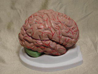 BUDGET BRAIN WITH ARTERIES MODEL - Click Image to Close