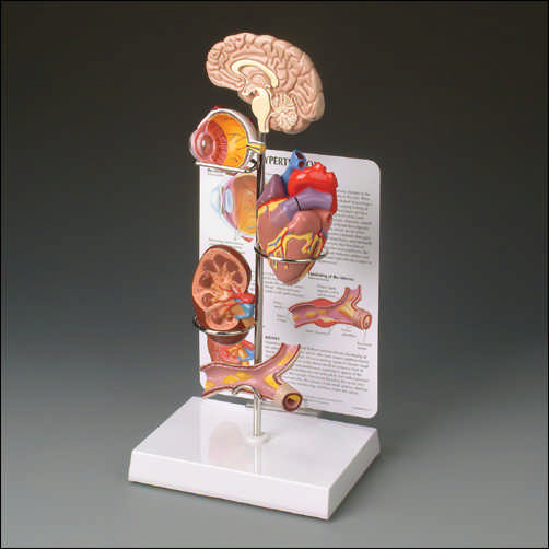 HYPERTENSION MODEL SET