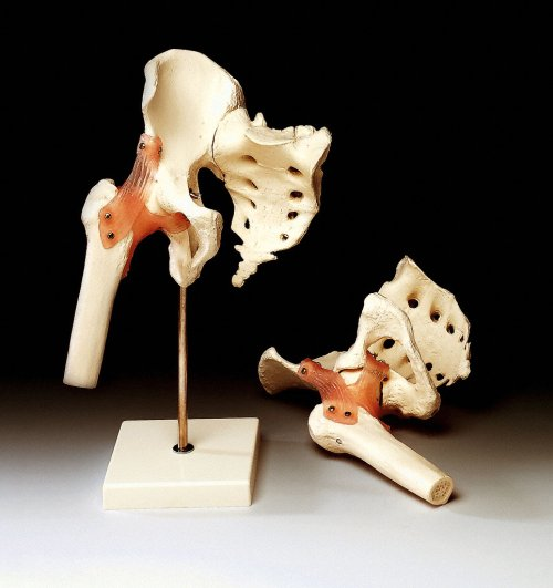 HIP JOINT WITH DETACHABLE LIGAMENTS